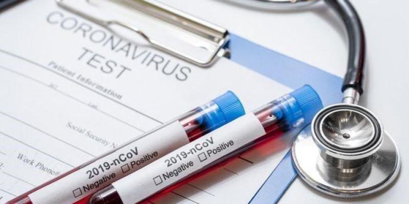 Israel anuncia remédio contra coronavírus