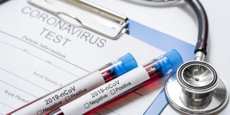 Prefeitura SP testará pessoas para coronavírus em todo o município