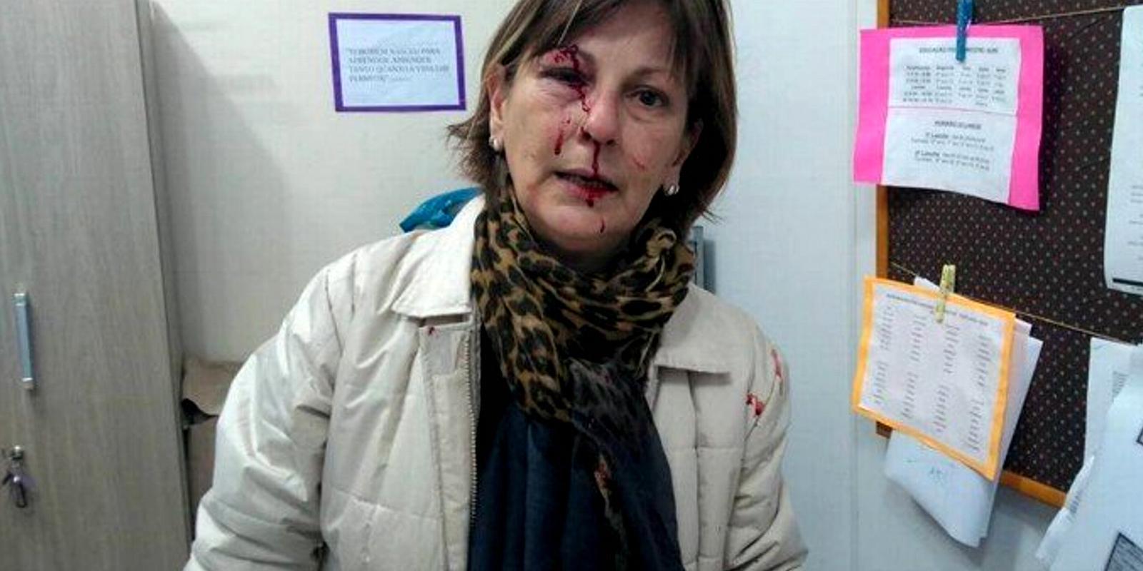 """""""Dilacerada"""". Professora agredida por aluno"""
