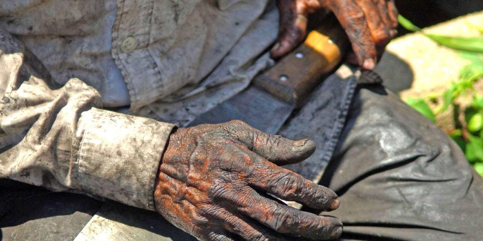 OTB alerta sobre massacre dos trabalhadores